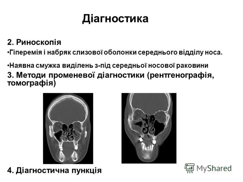 Діагностика 2. Риноскопія Гіперемія і набряк слизової оболонки середнього відділу носа. Наявна смужка виділень з-під середньої носової раковини 3. Методи променевої діагностики (рентгенографія, томографія) 4. Діагностична пункція