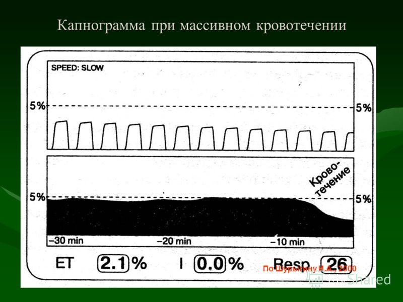 Капнограмма при массивном кровотечении По Шурыгину И.А., 2000