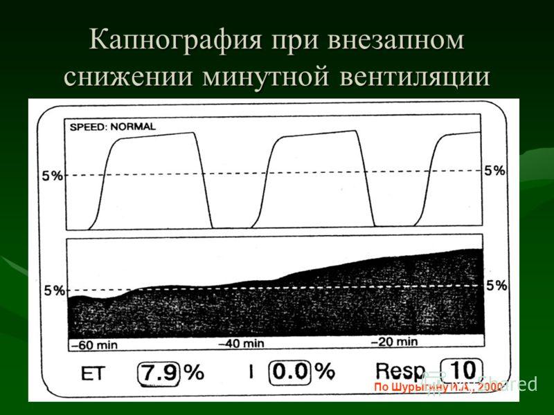 Капнография при внезапном снижении минутной вентиляции По Шурыгину И.А., 2000