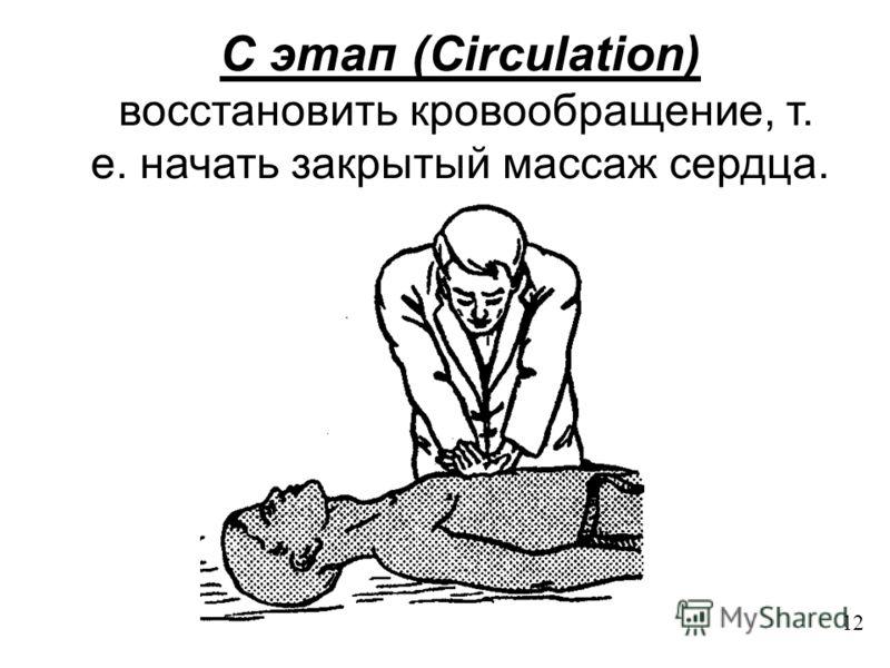 C этап (Circulation) восстановить кровообращение, т. е. начать закрытый массаж сердца. 12