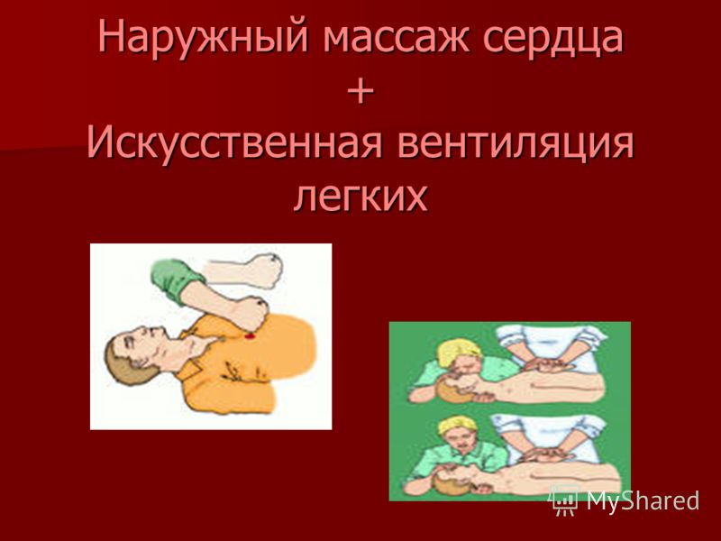 Наружный массаж сердца + Искусственная вентиляция легких