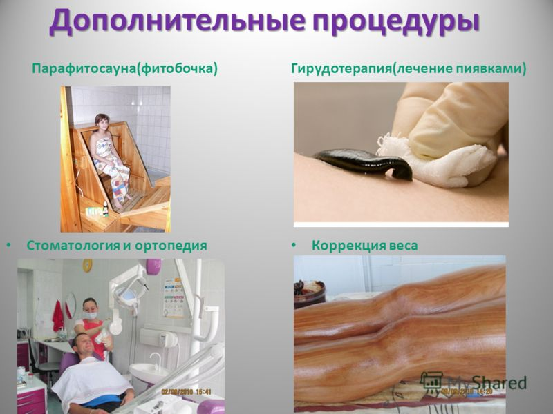Дополнительные процедуры Парафитосауна(фитобочка) Стоматология и ортопедия Гирудотерапия(лечение пиявками) Коррекция веса