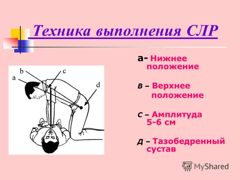 Техника выполнения СЛР а- Нижнее положение В – Верхнее положение С – Амплитуда 5-6 см Д – Тазобедренный сустав