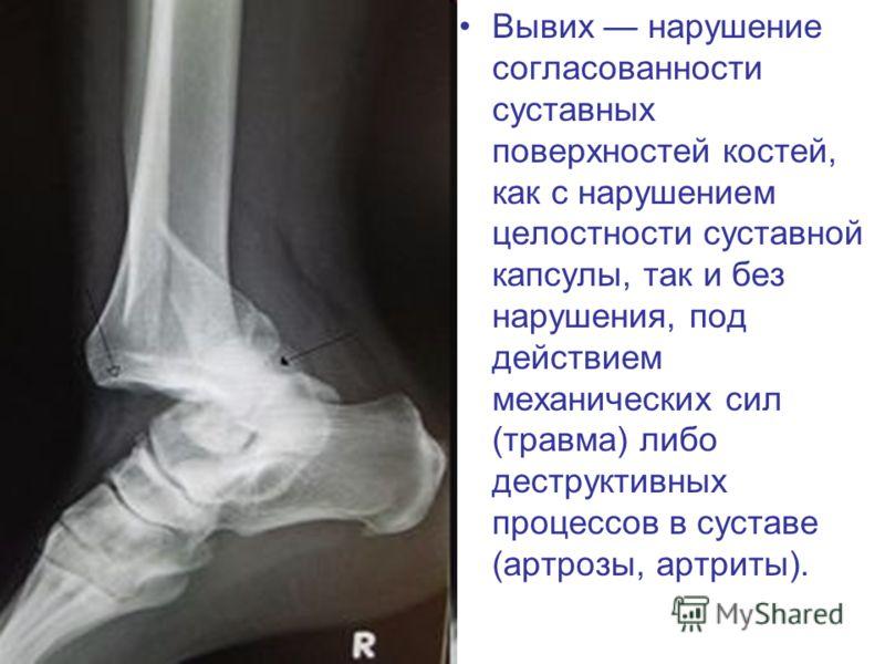 Вывих нарушение согласованности суставных поверхностей костей, как с нарушением целостности суставной капсулы, так и без нарушения, под действием механических сил (травма) либо деструктивных процессов в суставе (артрозы, артриты).