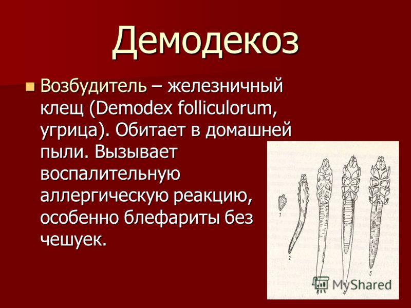 Демодекоз Возбудитель – железничный клещ (Demodex folliculorum, угрица). Обитает в домашней пыли. Вызывает воспалительную аллергическую реакцию, особенно блефариты без чешуек. Возбудитель – железничный клещ (Demodex folliculorum, угрица). Обитает в д
