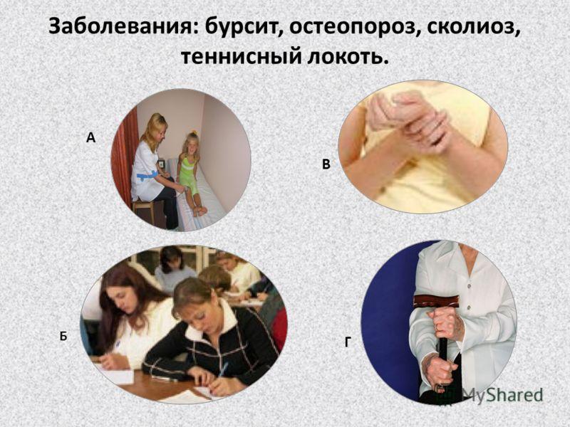 Заболевания: бурсит, остеопороз, сколиоз, теннисный локоть. А Б В Г