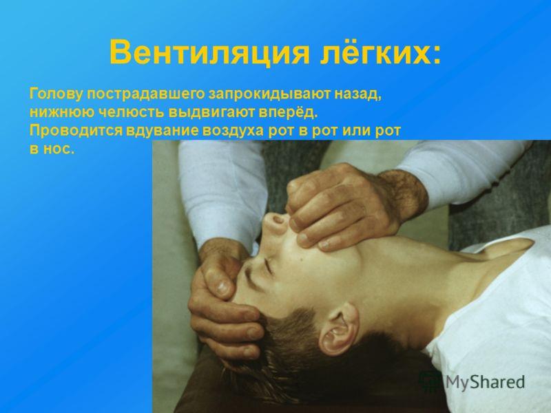 Вентиляция лёгких: Голову пострадавшего запрокидывают назад, нижнюю челюсть выдвигают вперёд. Проводится вдувание воздуха рот в рот или рот в нос.