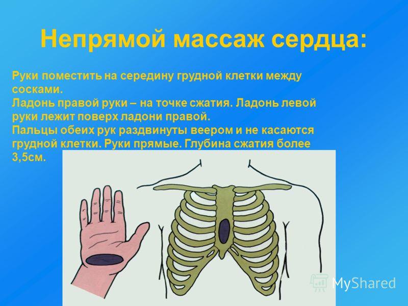 Непрямой массаж сердца: Руки поместить на середину грудной клетки между сосками. Ладонь правой руки – на точке сжатия. Ладонь левой руки лежит поверх ладони правой. Пальцы обеих рук раздвинуты веером и не касаются грудной клетки. Руки прямые. Глубина