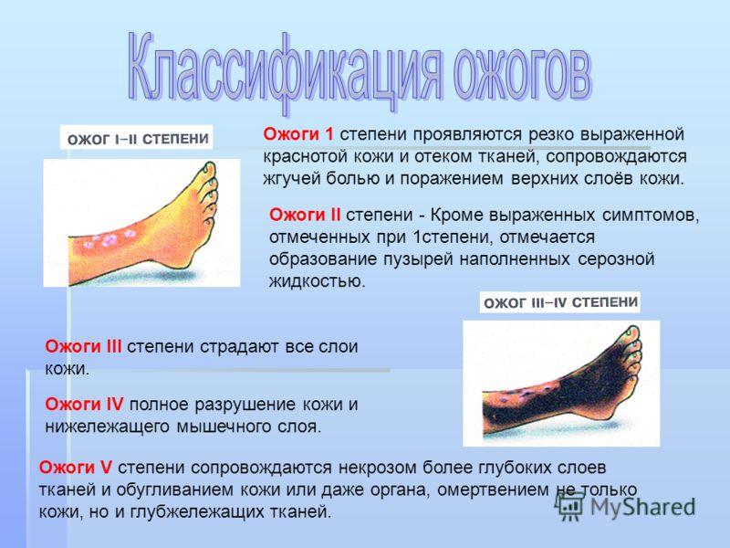 Ожоги 1 степени проявляются резко выраженной краснотой кожи и отеком тканей, сопровождаются жгучей болью и поражением верхних слоёв кожи. Ожоги II степени - Кроме выраженных симптомов, отмеченных при 1степени, отмечается образование пузырей наполненн