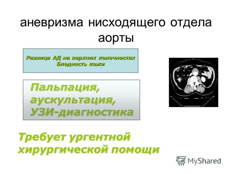 аневризма нисходящего отдела аорты Пальпация,аускультация,УЗИ-диагностика Разница АД на верхних конечностях Бледность кожи Требует ургентной хирургической помощи