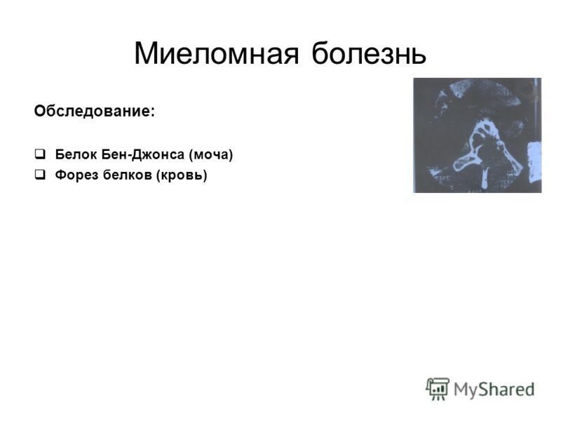 Миеломная болезнь Обследование: Белок Бен-Джонса (моча) Форез белков (кровь)