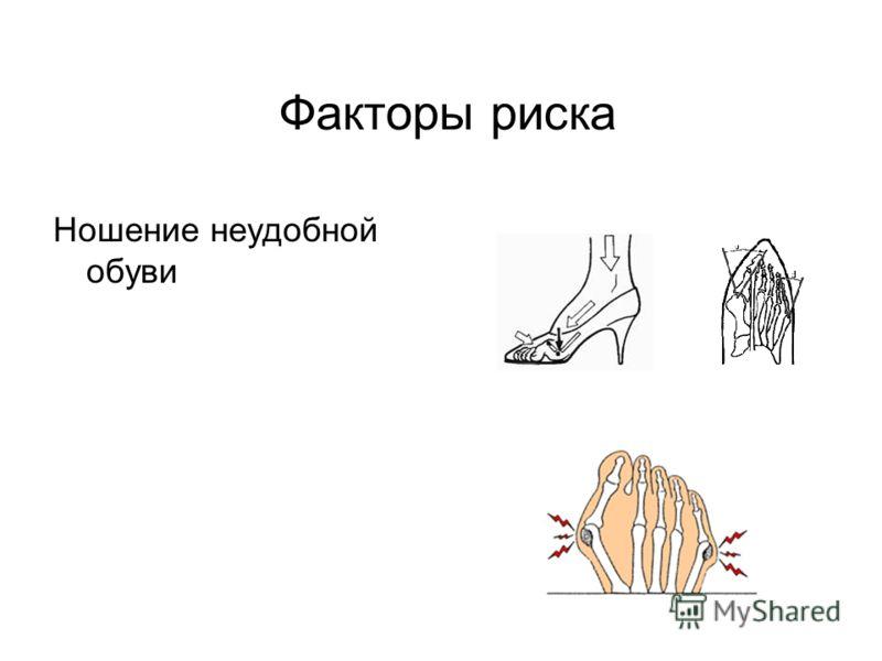 Факторы риска Ношение неудобной обуви
