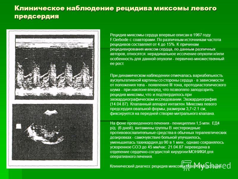 Миксофиброма