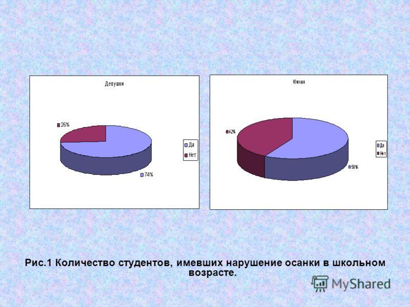 Рис.1 Количество студентов, имевших нарушение осанки в школьном возрасте.