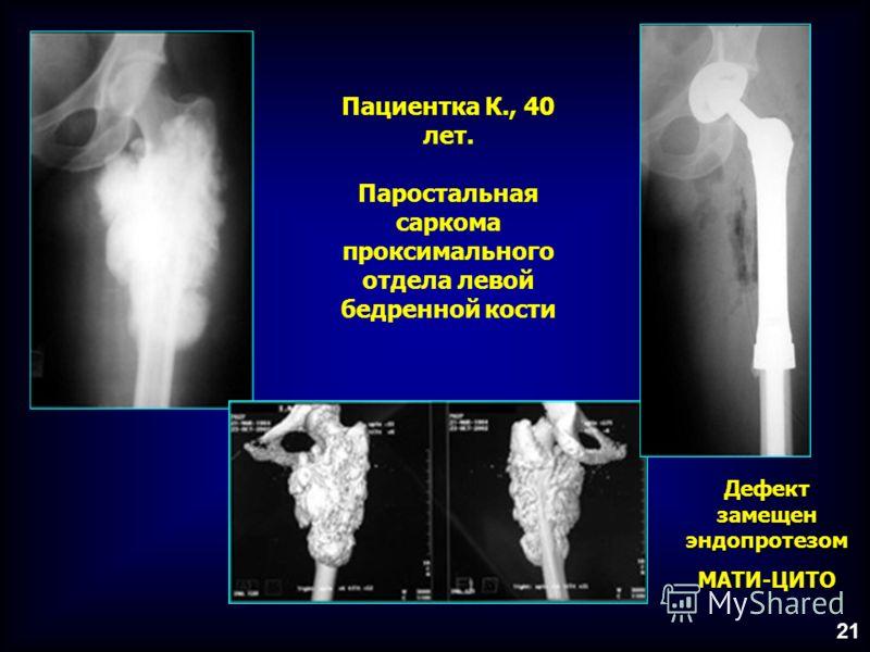 Пациентка К., 40 лет. Паростальная саркома проксимального отдела левой бедренной кости 21 Дефект замещен эндопротезом МАТИ-ЦИТО
