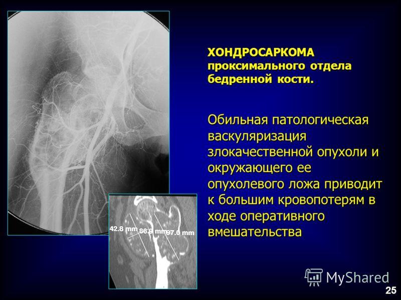 ХОНДРОСАРКОМА проксимального отдела бедренной кости. Обильная патологическая васкуляризация злокачественной опухоли и окружающего ее опухолевого ложа приводит к большим кровопотерям в ходе оперативного вмешательства 25