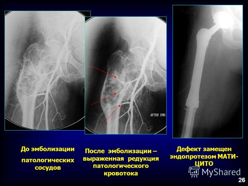 До эмболизации патологических сосудов После эмболизации – выраженная редукция патологического кровотока Дефект замещен эндопротезом МАТИ- ЦИТО 26