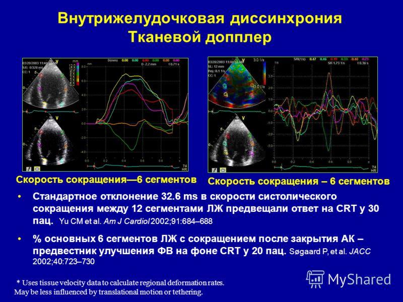 Внутрижелудочковая диссинхрония Тканевой допплер Скорость сокращения6 сегментов Скорость сокращения – 6 сегментов Стандартное отклонение 32.6 ms в скорости систолического сокращения между 12 сегментами ЛЖ предвещали ответ на CRT у 30 пац. Yu CM et al