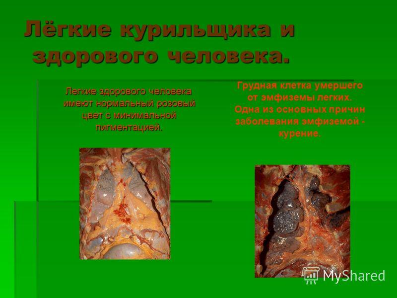 Лёгкие курильщика и здорового человека. Легкие здорового человека имеют нормальный розовый цвет с минимальной пигментацией. Легкие здорового человека имеют нормальный розовый цвет с минимальной пигментацией. Грудная клетка умершего от эмфиземы легких