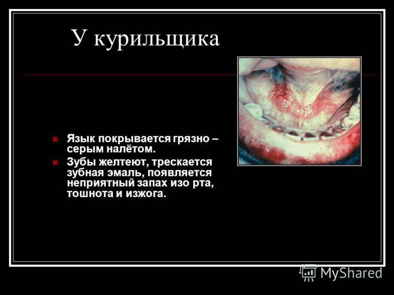У курильщика Язык покрывается грязно – серым налётом. Зубы желтеют, трескается зубная эмаль, появляется неприятный запах изо рта, тошнота и изжога.