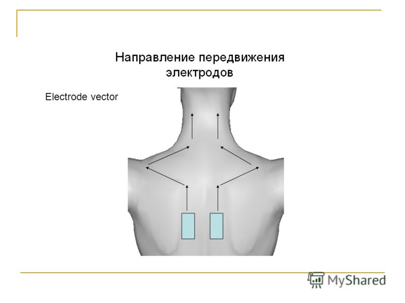 Electrode vector