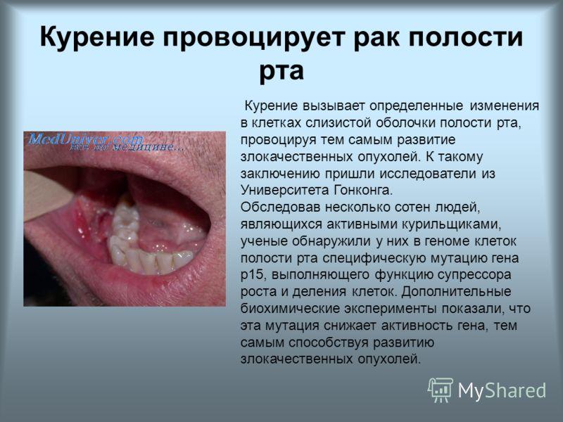 Курение провоцирует рак полости рта Курение вызывает определенные изменения в клетках слизистой оболочки полости рта, провоцируя тем самым развитие злокачественных опухолей. К такому заключению пришли исследователи из Университета Гонконга. Обследова