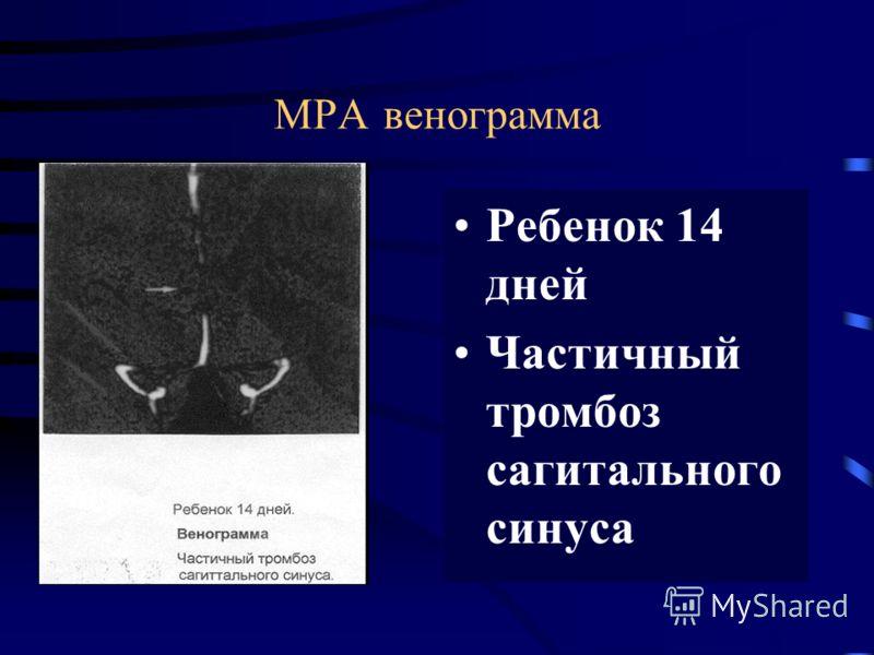У детей рожденных от матерей с антифосфолипидным синдромом Высокий риск 11% двигательных нарушений Причины: неонатальные ишемические инфаркты Венозные тромбозы Neurological outcome of children born to antiphospholipid antibody-positive mothers B.M. T