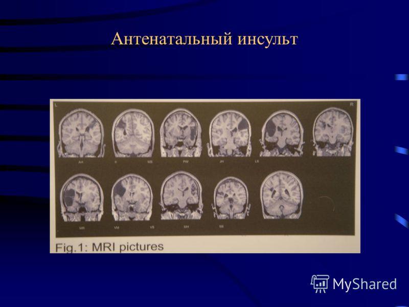 Клиника перинатальных инсультов Судороги Летаргия Парезы Клинически немые с поздней диагностикой К 3-6 мес парезы эпилепсия, нарушение моторного, речевого развития, ДЦП