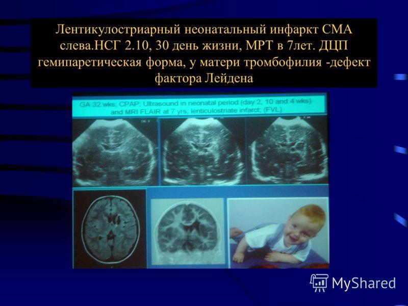 Антенатальный инсульт