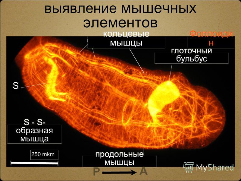 Гистохимическое выявление мышечных элементов кольцевые мышцы S - S- образная мышца S глоточный бульбус продольные мышцы 250 mkm A P Фоллоиди н