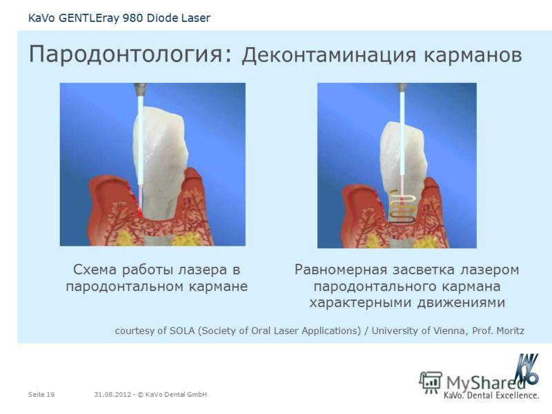 31.08.2012 - © KaVo Dental GmbHSeite 19 KaVo GENTLEray 980 Diode Laser Схема работы лазера в пародонтальном кармане Равномерная засветка лазером пародонтального кармана характерными движениями courtesy of SOLA (Society of Oral Laser Applications) / U