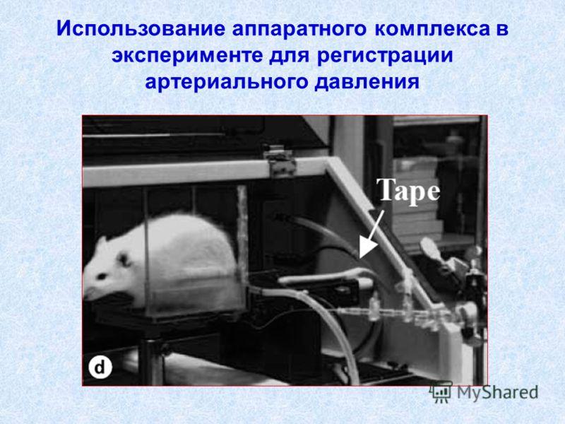 Использование аппаратного комплекса в эксперименте для регистрации артериального давления