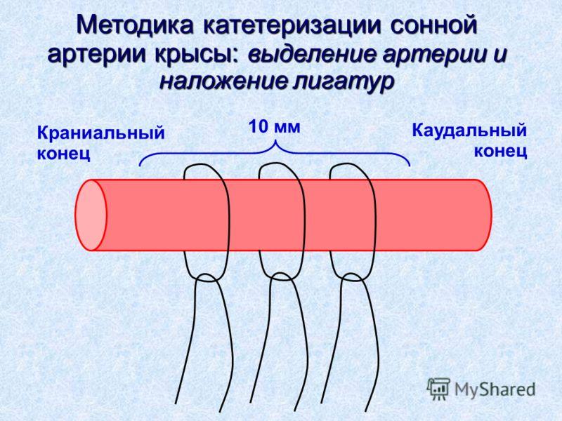 Методика катетеризации сонной артерии крысы: выделение артерии и наложение лигатур Краниальный конец Каудальный конец 10 мм