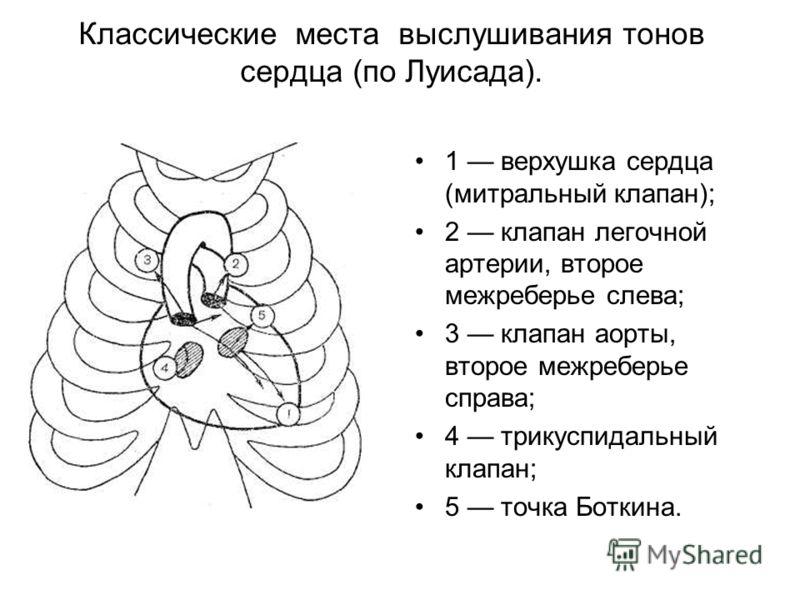 Классические места выслушивания тонов сердца (по Луисада). 1 верхушка сердца (митральный клапан); 2 клапан легочной артерии, второе межреберье слева; 3 клапан аорты, второе межреберье справа; 4 трикуспидальный клапан; 5 точка Боткина.