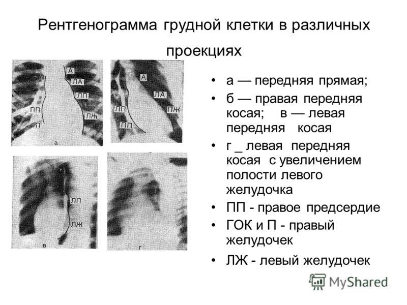 Рентгенограмма грудной клетки в различных проекциях а передняя прямая; б правая передняя косая; в левая передняя косая г _ левая передняя косая с увеличением полости левого желудочка ПП - правое предсердие ГОК и П - правый желудочек ЛЖ - левый желудо