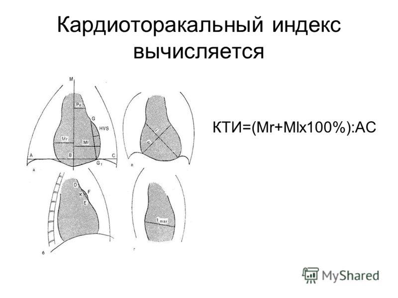 Кардиоторакальный индекс вычисляется КТИ=(Mr+Mlх100%):АС