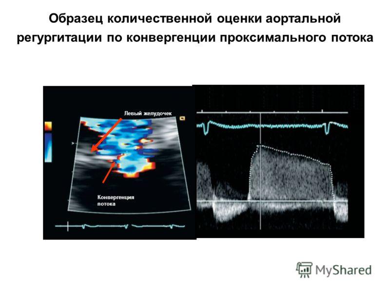 Образец количественной оценки аортальной регургитации по конвергенции проксимального потока Конвергенция потока Левый желудочек