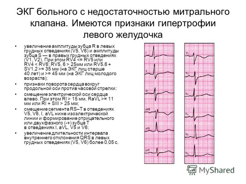 ЭКГ больного с недостаточностью митрального клапана. Имеются признаки гипертрофии левого желудочка увеличение амплитуды зубца R в левых грудных отведениях (V5, V6) и амплитуды зубца S в правых грудных отведениях (V1, V2). При этом RV4 25мм или RV5,6