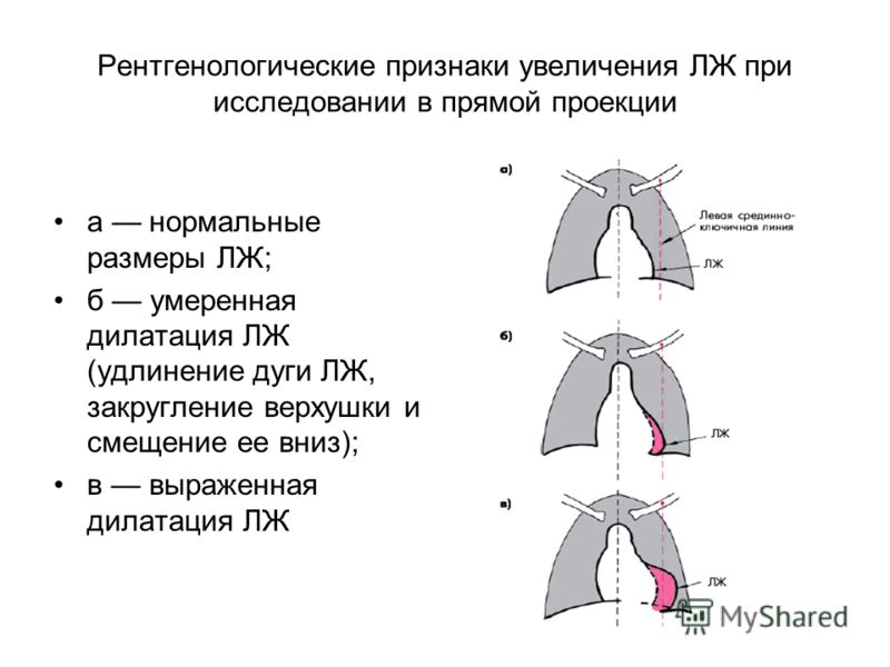 Рентгенологические признаки увеличения ЛЖ при исследовании в прямой проекции а нормальные размеры ЛЖ; б умеренная дилатация ЛЖ (удлинение дуги ЛЖ, закругление верхушки и смещение ее вниз); в выраженная дилатация ЛЖ