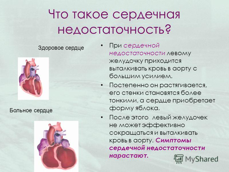 Что такое сердечная недостаточность? При сердечной недостаточности левому желудочку приходится выталкивать кровь в аорту с большим усилием. Постепенно он растягивается, его стенки становятся более тонкими, а сердце приобретает форму яблока. После это