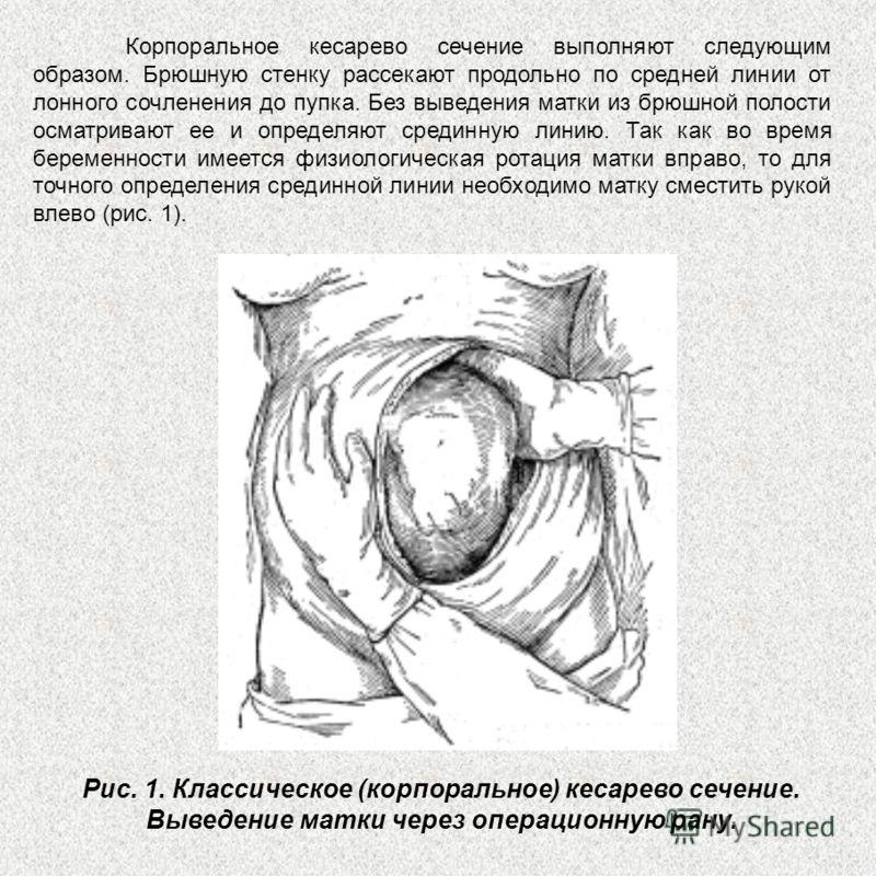 Корпоральное кесарево сечение выполняют следующим образом. Брюшную стенку рассекают продольно по средней линии от лонного сочленения до пупка. Без выведения матки из брюшной полости осматривают ее и определяют срединную линию. Так как во время береме