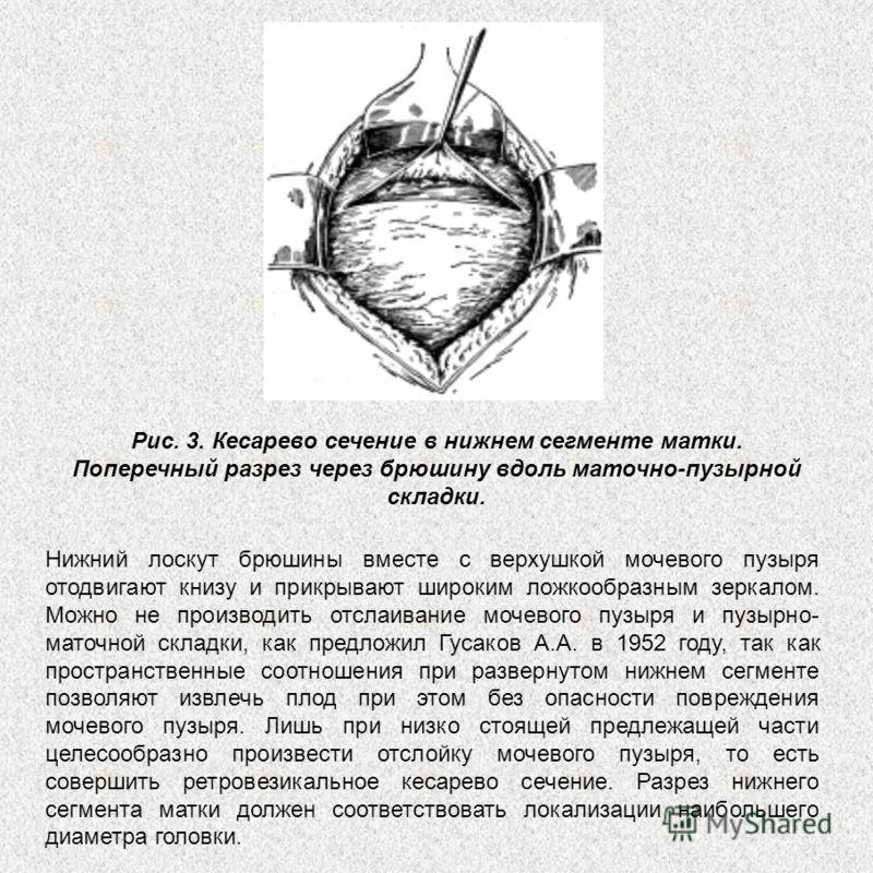 Рис. 3. Кесарево сечение в нижнем сегменте матки. Поперечный разрез через брюшину вдоль маточно-пузырной складки. Нижний лоскут брюшины вместе с верхушкой мочевого пузыря отодвигают книзу и прикрывают широким ложкообразным зеркалом. Можно не производ