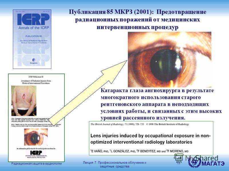 Радиационная защита в кардиологии МАГАТЭ 13 Катаракта глаза ангиохирурга в результате многократного использования старого рентгеновского аппарата в неподходящих условиях работы, и связанных с этим высоких уровней рассеянного излучения. Публикация 85