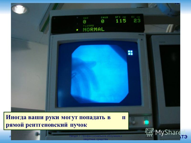 Радиационная защита в кардиологии МАГАТЭ 43 Иногда ваши руки могут попадать в п рямой рентгеновский пучок Лекция 7: Профессиональное облучение и защитные средства