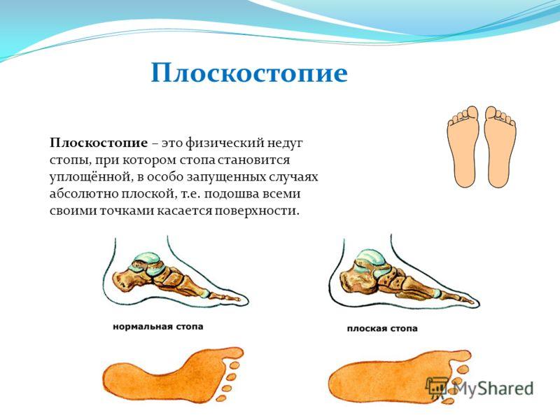 Плоскостопие Плоскостопие – это физический недуг стопы, при котором стопа становится уплощённой, в особо запущенных случаях абсолютно плоской, т.е. подошва всеми своими точками касается поверхности.