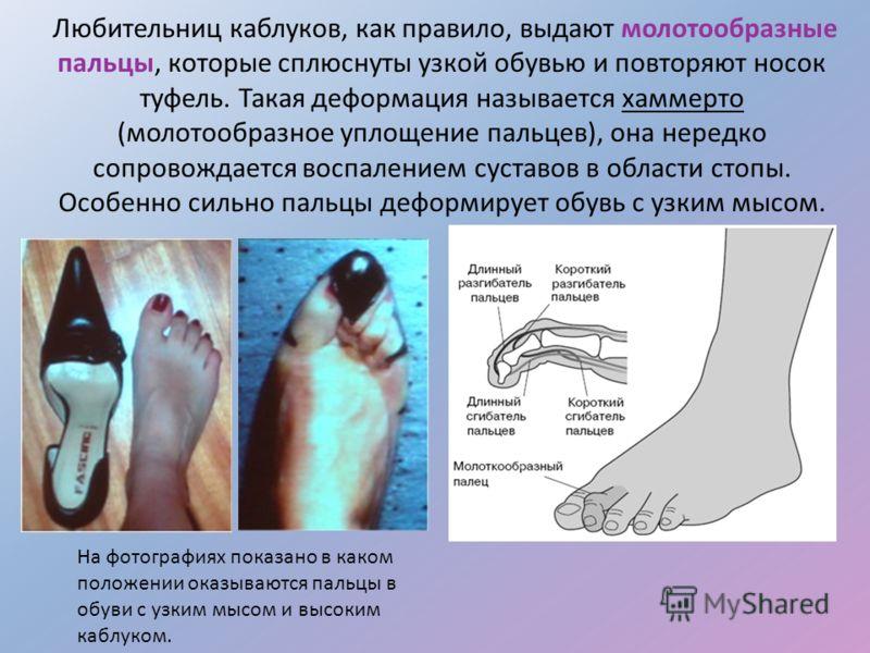 Любительниц каблуков, как правило, выдают молотообразные пальцы, которые сплюснуты узкой обувью и повторяют носок туфель. Такая деформация называется хаммерто (молотообразное уплощение пальцев), она нередко сопровождается воспалением суставов в облас