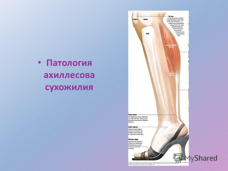 Патология ахиллесова сухожилия