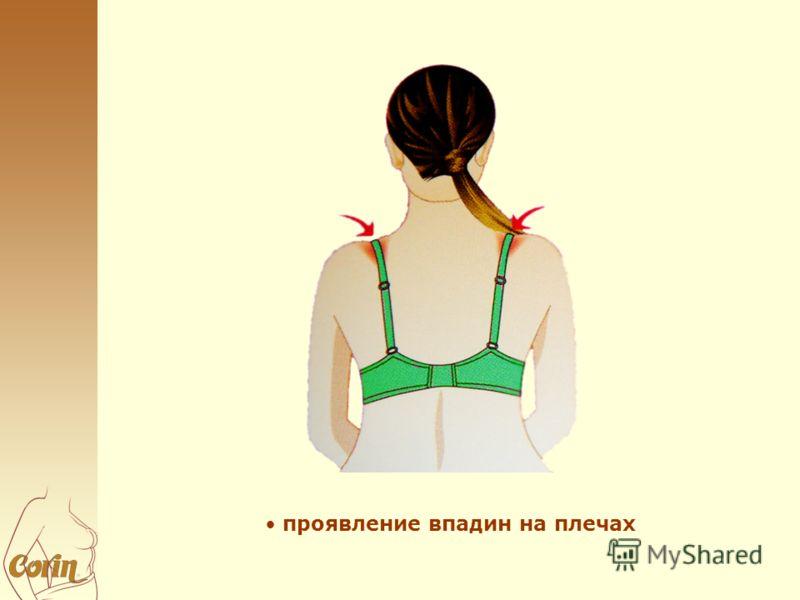 проявление впадин на плечах