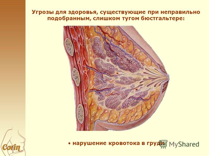 Угрозы для здоровья, существующие при неправильно подобранным, слишком тугом бюстгальтере: нарушение кровотока в груди