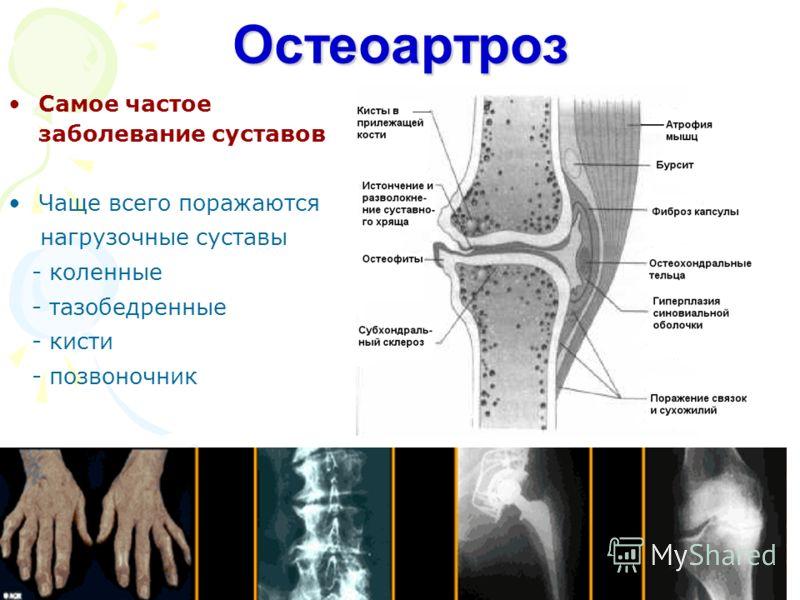 Остеоартроз фото